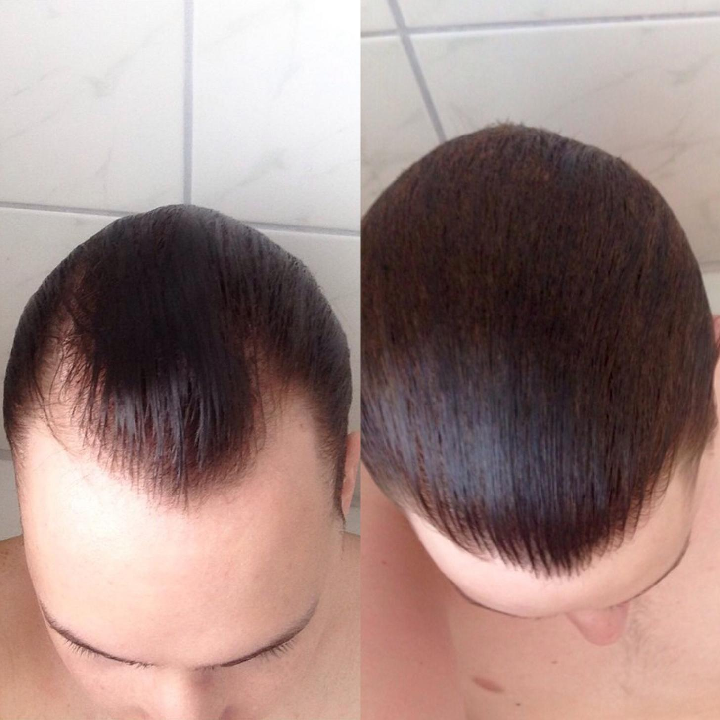 Before and after the use of Finasteride